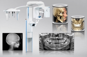 Advanced Technology from Brentwood Periodontists