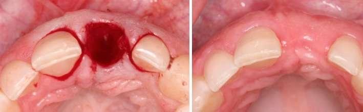 dental bone graft surgery beverly hills