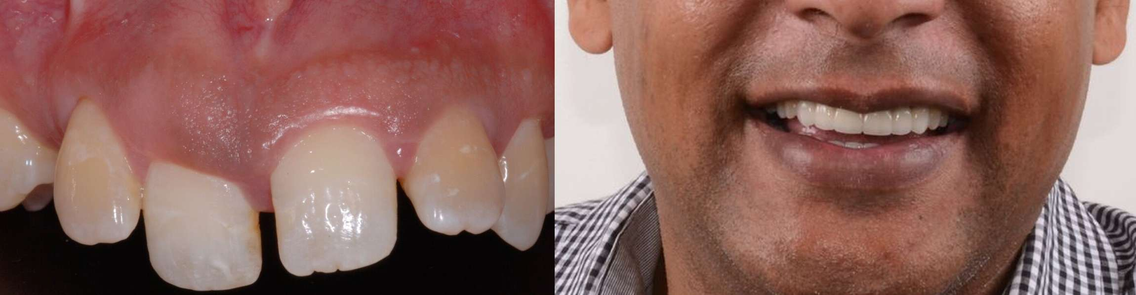 single tooth implant before after