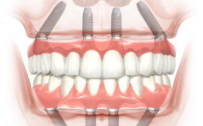 Graftless Dental Implant Solutions