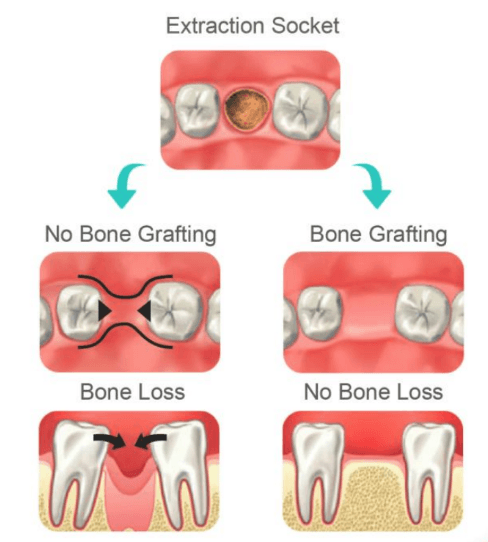 Autogenous dentin grafting