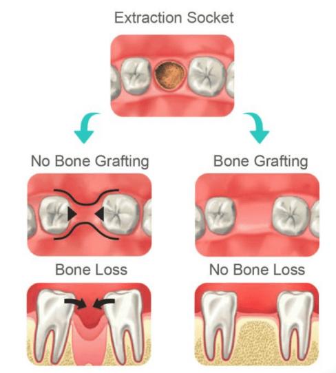 Autogenous dentin grafting