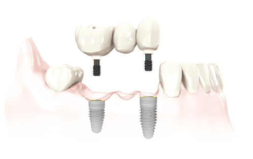 multiple missing teeth dental implants