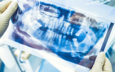 HOW AND WHEN TO SEE A PERIODONTIST