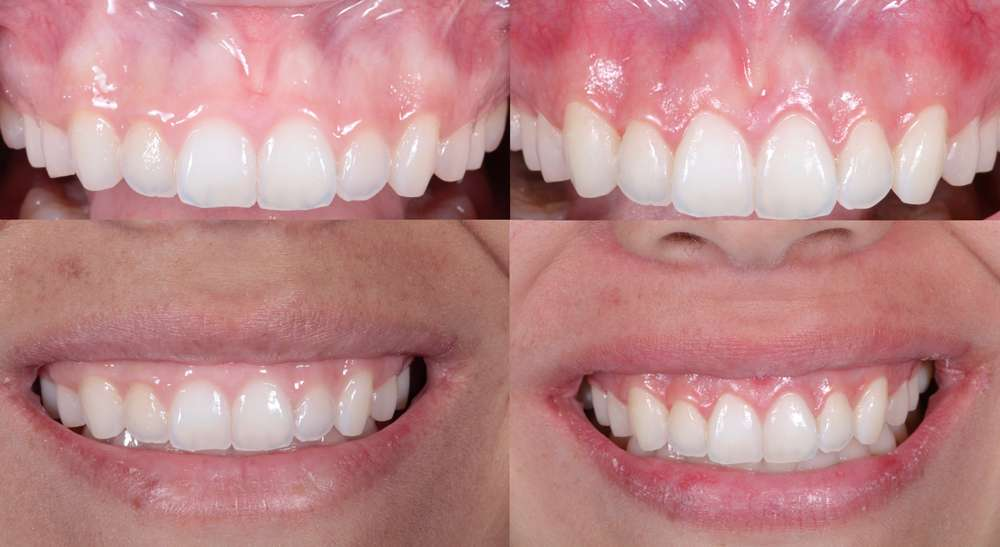 aesthetic crown lengthening los angeles