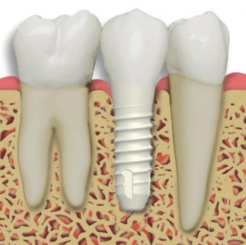Image result for Dental Implants Los Angeles