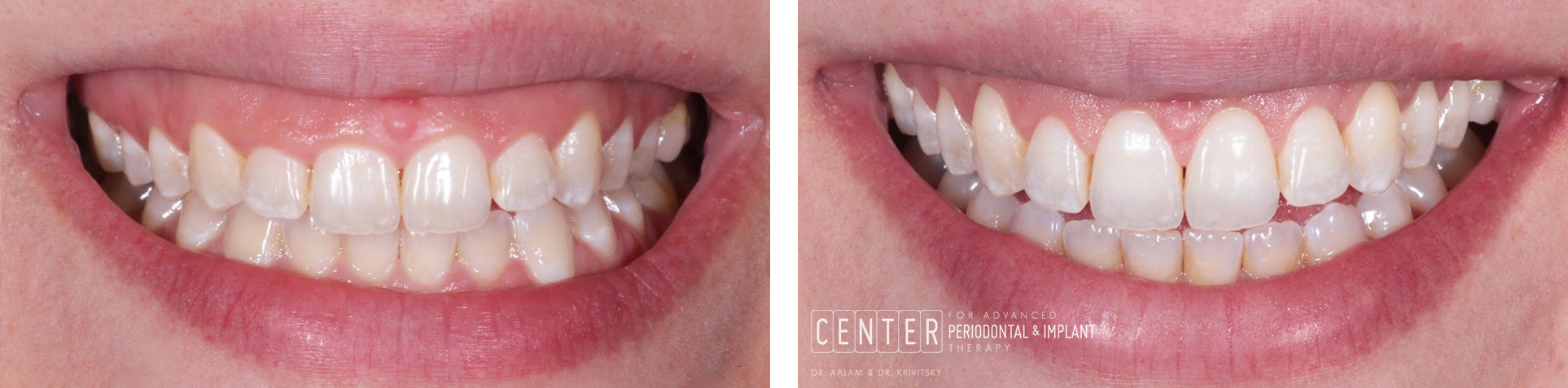 malibu periodontist