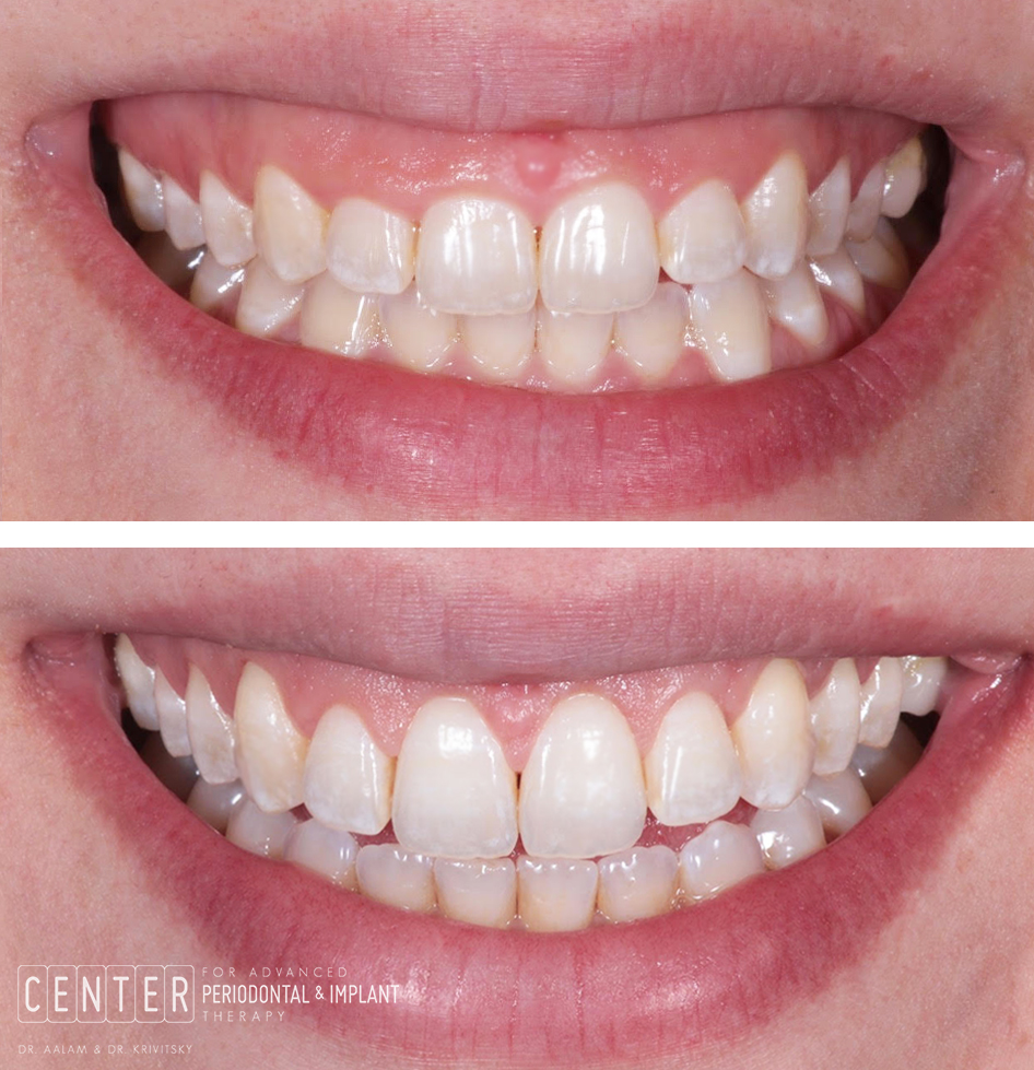 patient close up before and after crown lengthening surgery