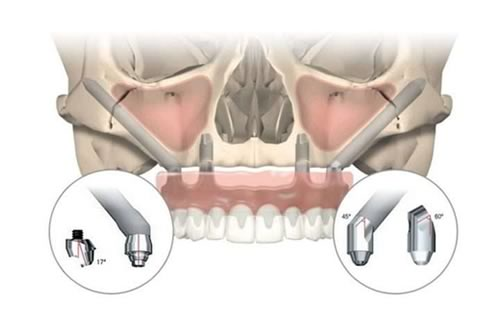 zygomatic implants dental solution