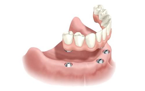 all-on-4 tooth replacement dental implants