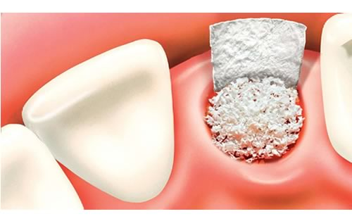 bone graft after tooth extraction