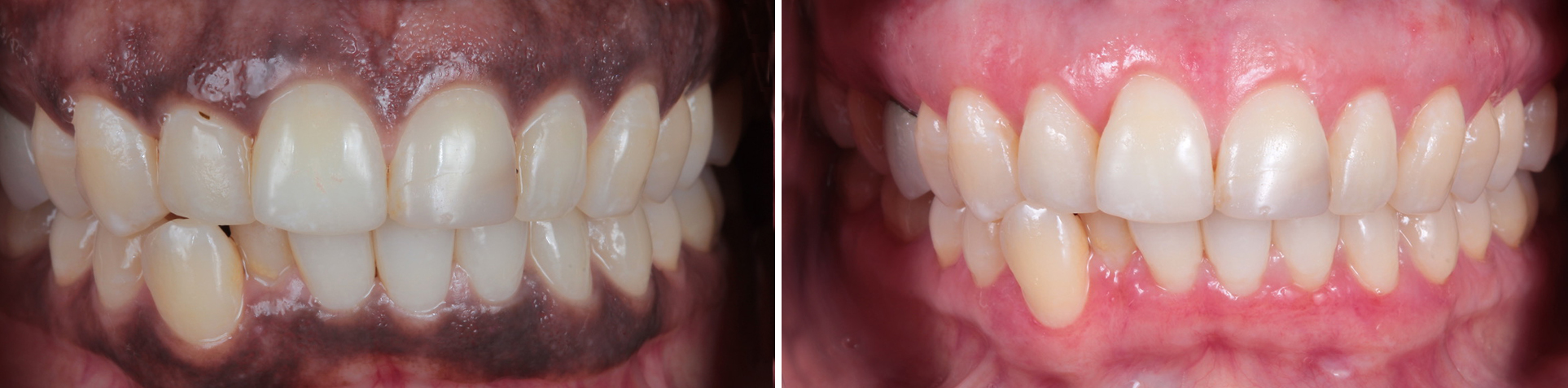 Image of Multiple Dental Implants Before and After by Dr Aalam and Dr Krivitsky at Implant Perio Center Westwood Los Angeles