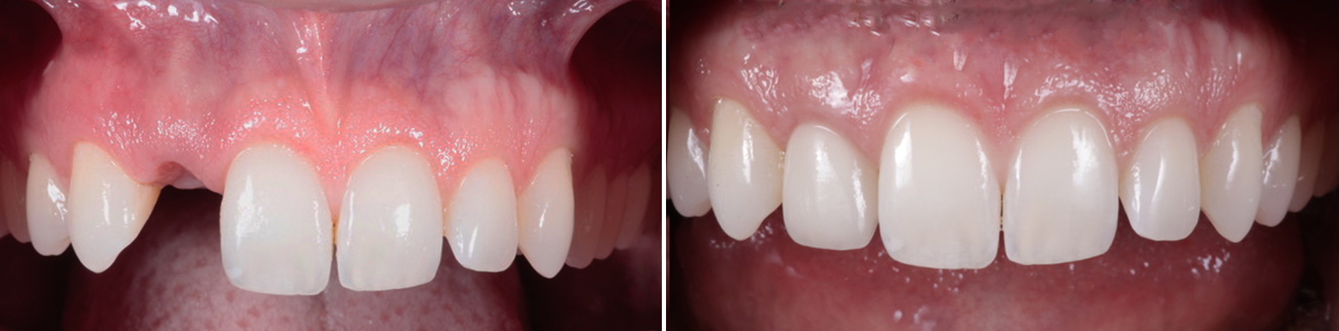 Photo of Cosmetic Gum Depigmentation by Beverly Hills Periodontist Dr. Aalam and Dr. Krivitsky
