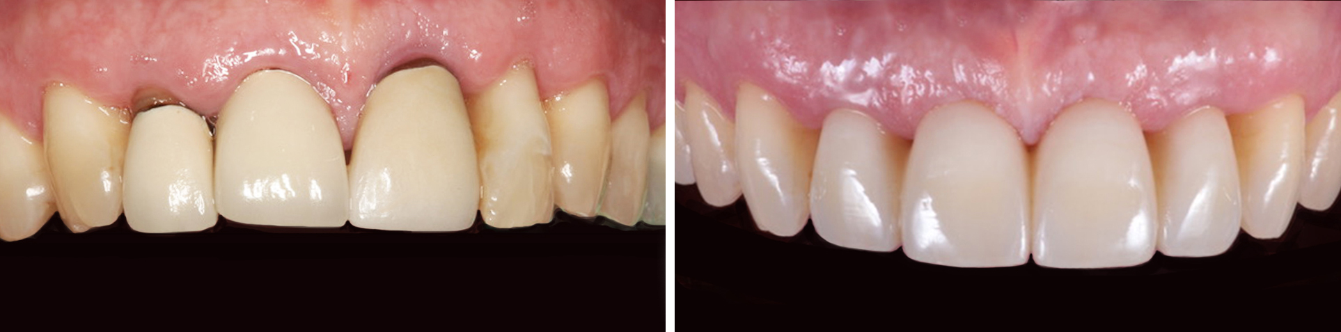 sinus bone graft before after
