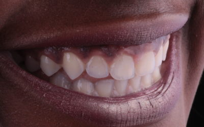 Gummy Smile Correction: A life-changing case!