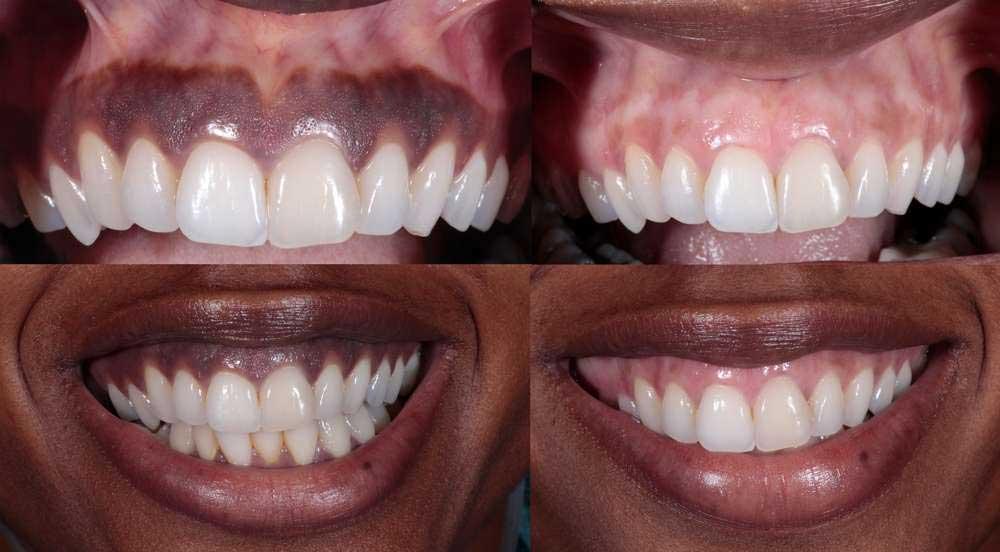 dark gums before and after gum depigmentation