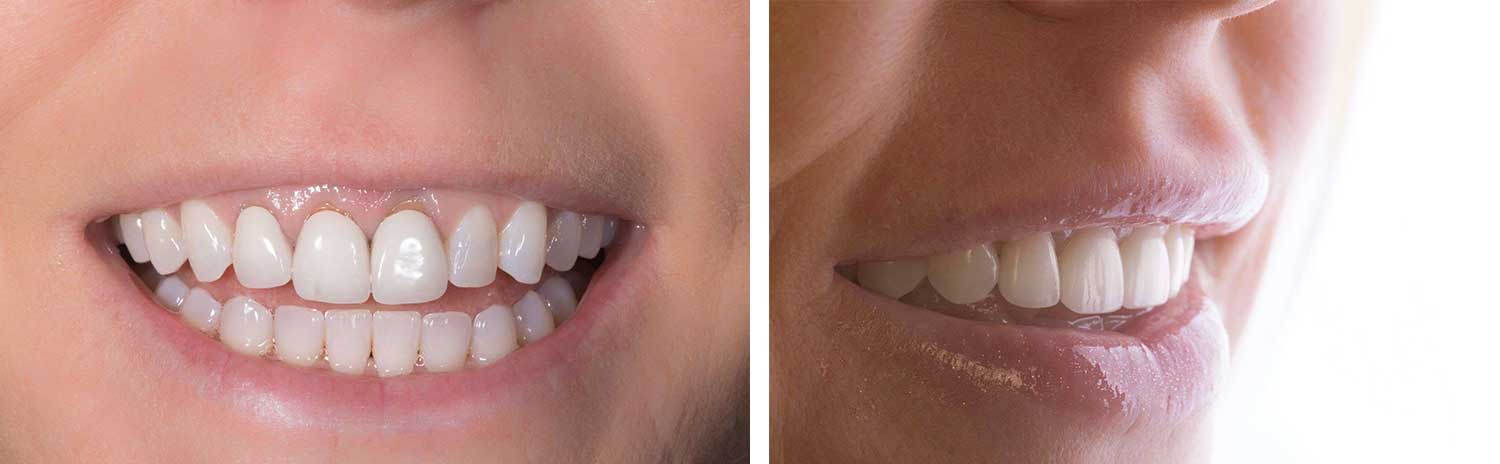 gorgeous before and after smile from a patient in Los Angeles after a gummy smile treatment
