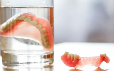 Dentures vs. Implants Which Is The Better Option?
