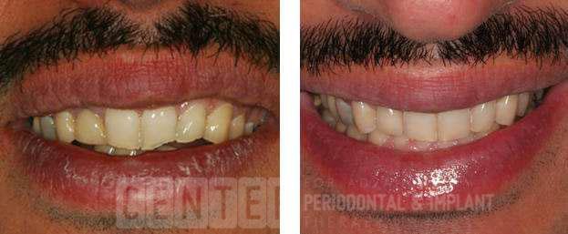 Dental Implants & White Bonding Fillings