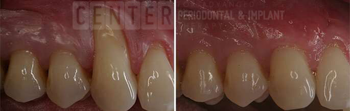gum graft before after 1