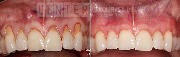 gum graft before after 3