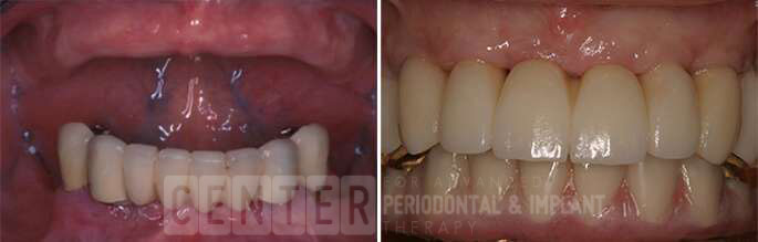 multiple teeth implant before after