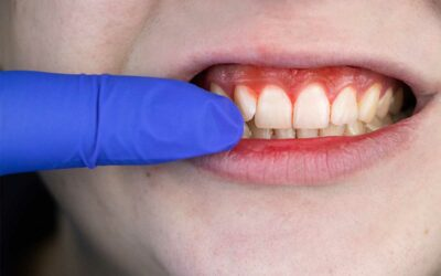 What are the Stages of Periodontal Disease?