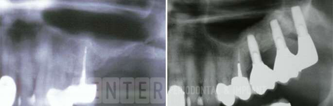 sinus bone graft before after