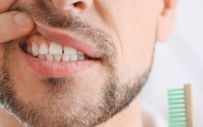 Itchy Gums: Symptoms, Causes, and Treatment