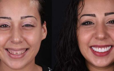 Gums Contouring and Reshaping: What is it?